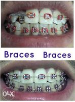Dental view all ads available in the philippines olx dental braces and fixed bridges solutioingenieria Gallery
