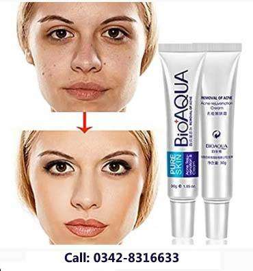 Acne Creams In Pakistan Free Classifieds In Pakistan Olx Com Pk