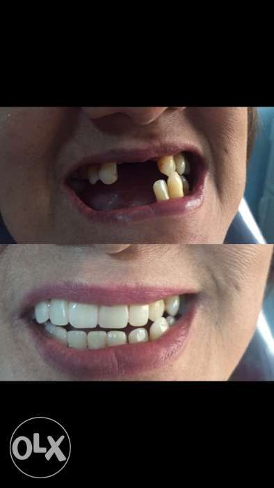 Big Discounts Denture Fixed Bridge Jacket Crown Dental Clinic