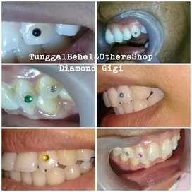 Diamond gigi semua warna & motif ada