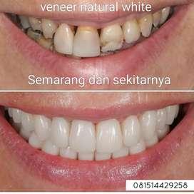 Veneer gigi natural white original USA