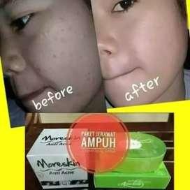 Cream Jerawat Ampuh, Obat Jerawat Membandel