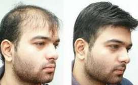 Hair replacement system at 12000 rs only