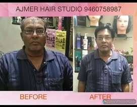 HAIR PATCH REPLACEMENT / BALDNESS TREATMENT