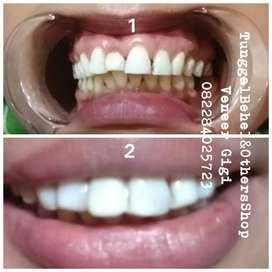 Veneer gigi extra white mulai 1 juta