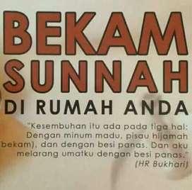 Bekam Sunnah di rumah