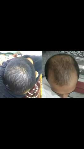 Hijama/cupping for hair regrowth