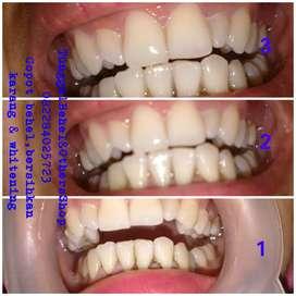 Pembersihan karang gigi & pemutihan