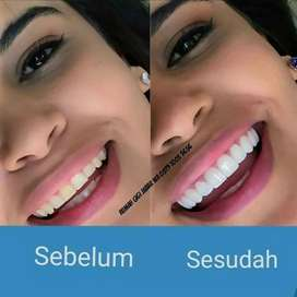 Veneer Gigi Cimahi