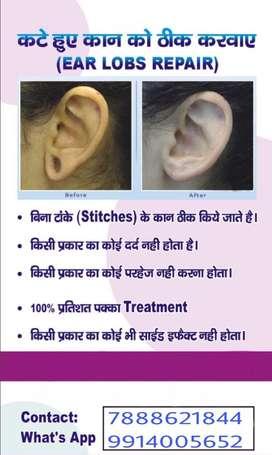 Ear lobs repair