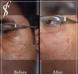 "Acne scar ""Microneedling treatment"" at your door step."