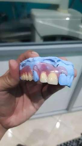Pasang gigi palsu murah dan berkwalitas