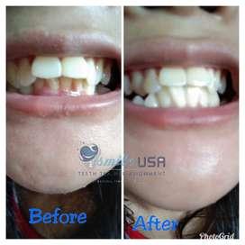 Perapih gigi i Smile USA
