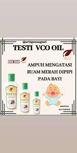 Vco oil mengatasi ruam pipi