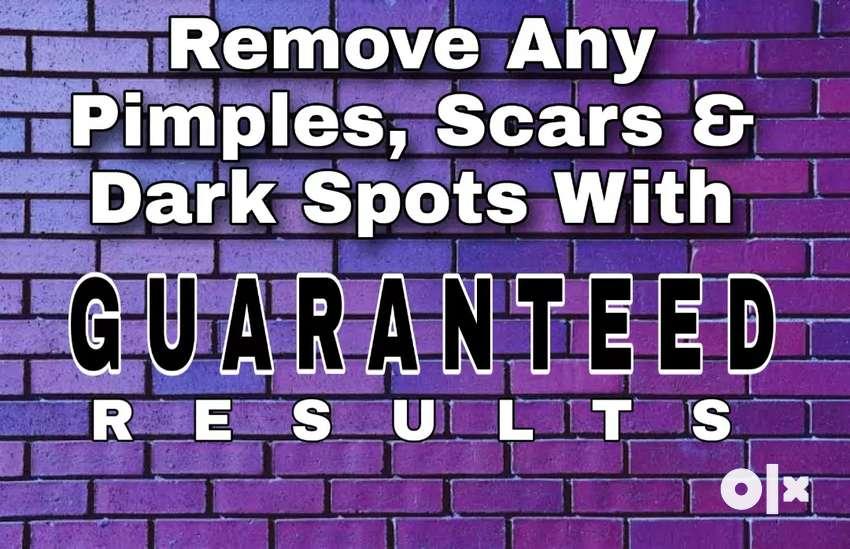 Get Fair & Spotless Skin