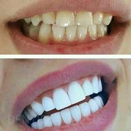 Dental Composite veneer Super white