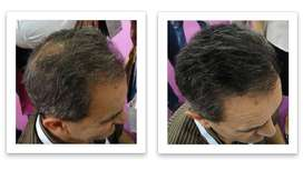 Mention The Bald spot and Cover Buy Caboki hair Fiber Call Now