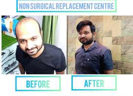 Non sergical Hair replacement in just 1 hr. Starting from 10k.