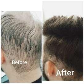 Hair patch 6500 ch strat hair salutation