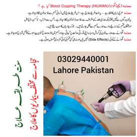 Hijama Cupping Therapy / Home Services / Lahore Pakistan