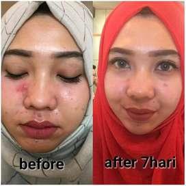 Paket Wajah Cream Rinna Diazella untuk Flek Hitam Di Aceh Besar