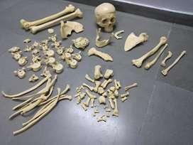 Artificial bone set