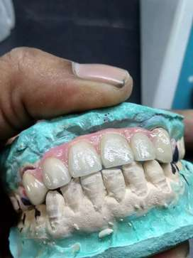 Fixed teeth are made here.