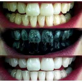 pemutih Gigi Teeth whitening