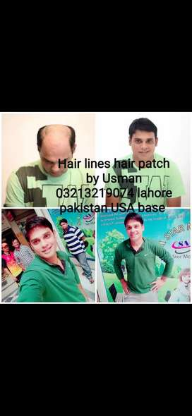 Hair patch  Hair Younat  Hair wig Hair transplant