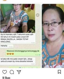 Cream Rinna Diazella untuk Flek Hitam Di Gorontalo