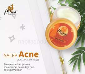 Salep acne helwa beutycare