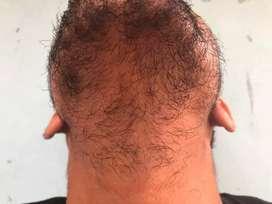 bukan jual palsu kirkland minoxidil biotin penumbuh rambut,brewok
