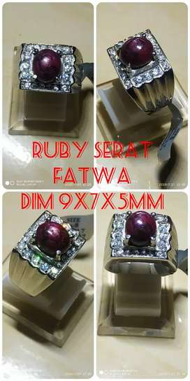 Batu cincin rubby star