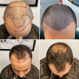 Need calling team 10 girls and 10 boys in hair transplant clinic
