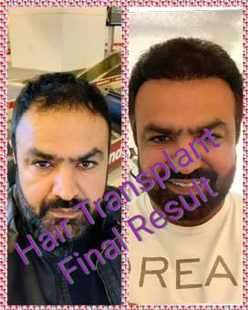 Hair transplant in Ludhiana, Chandigarh Punjab best results