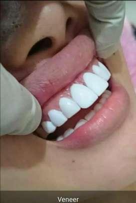 Veneer gigi & gigi palsu / tiruan