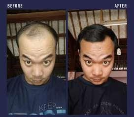 Minoxidil foam Penumbuh brewok dan rambut botak dijamin lebih cepat